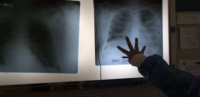 Mexican doctors have transplanted the lungs of a patient who suffered a coronavirus